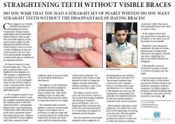Dr Fareed Amod - Straightening Teeth Without Visible Braces